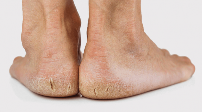 10 Amazing Home Remedies to Heal Cracked Heels