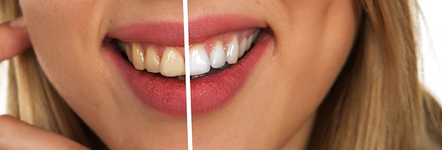 Tips to Keep Your Teeth Healthy and White for Life