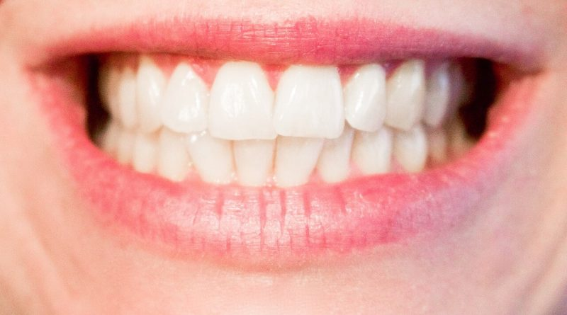 Ways to Keep Your Teeth Healthy and White for Life