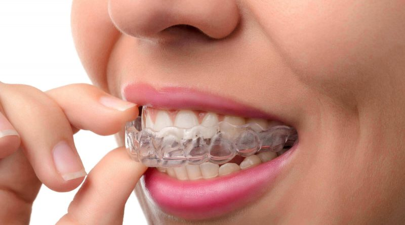 Your Guide to Teeth Straightening Options for Adults