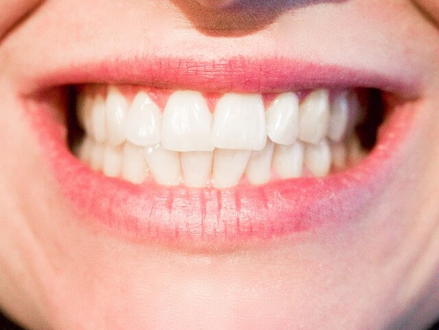 Banana Skin Teeth Whitening