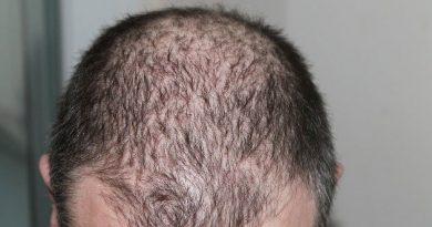 Reduce Hair Loss: How to Stop Hair Fall and Regrow Hair Naturally