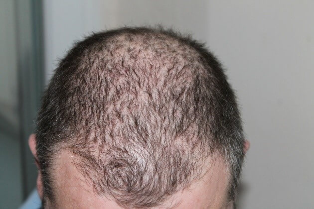 How Do I Stop Hair from Falling Hair Loss Control Tips